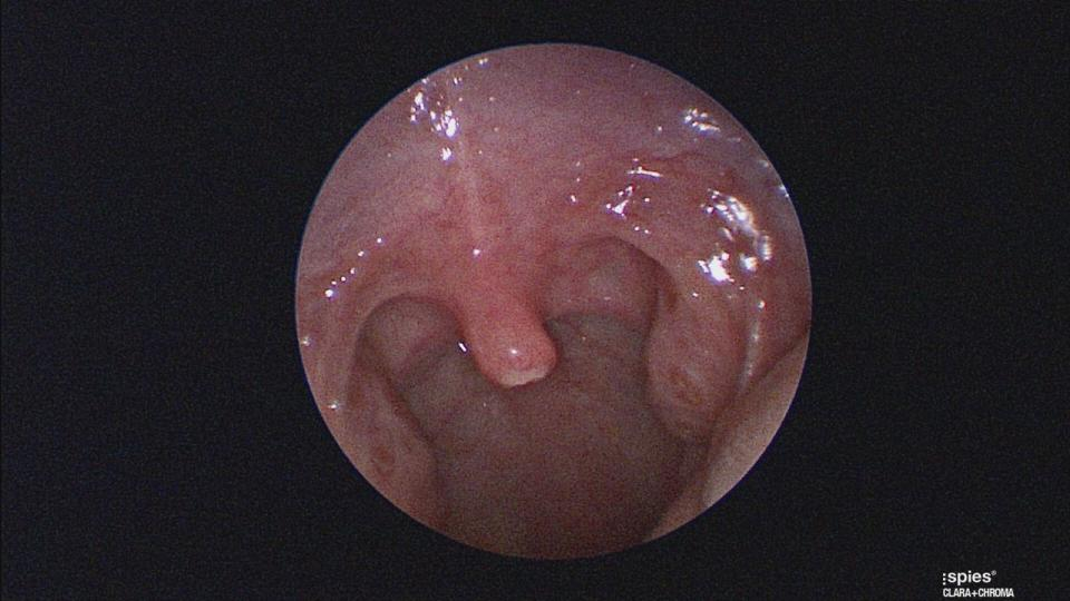 The uvula of a three-year-old girl is pictured after part of it was removed due to a trapped hair.