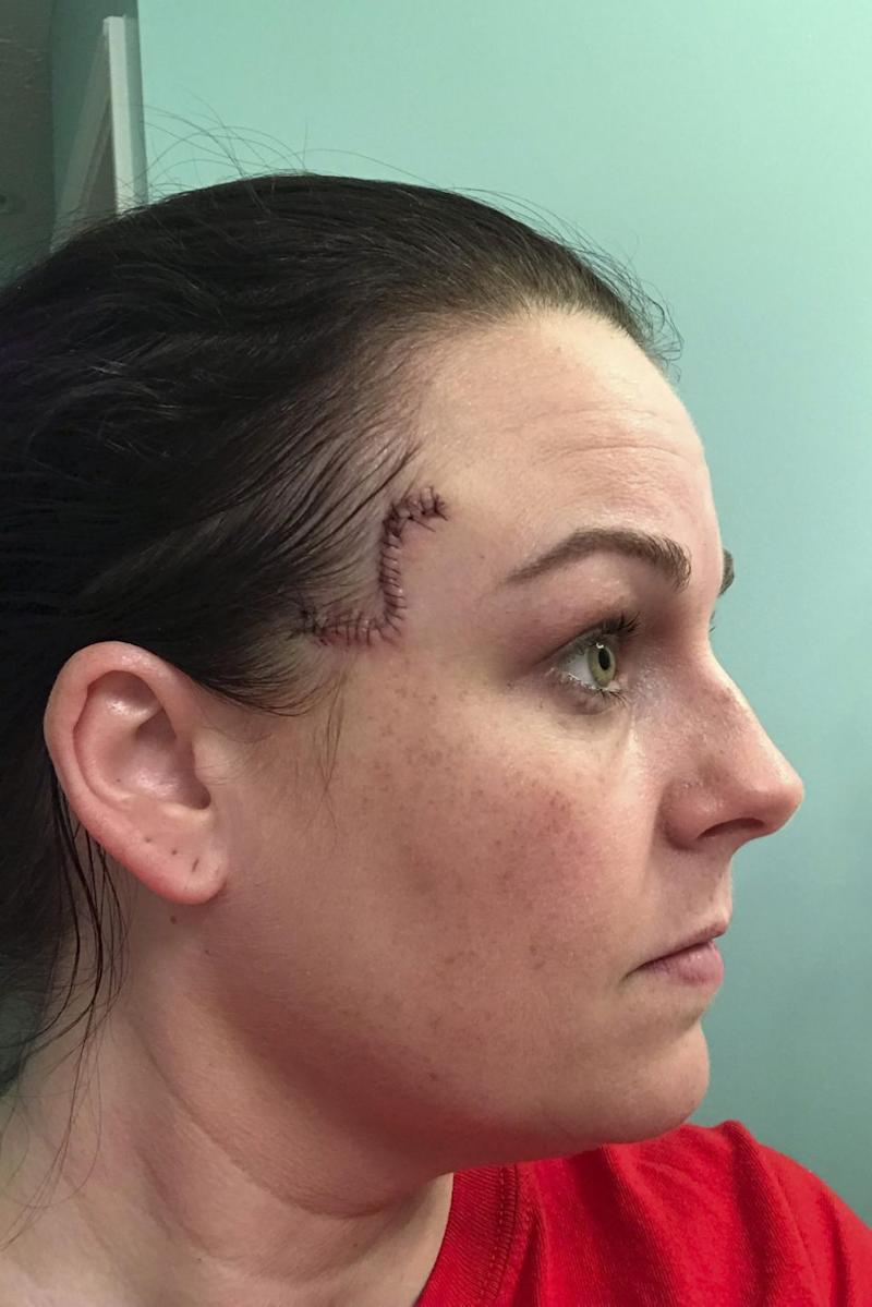 Keely was diagnosed with basal cell carcinoma – a skin cancer that can cause extreme disfigurement if left untreated - two months ago. Photo: Caters