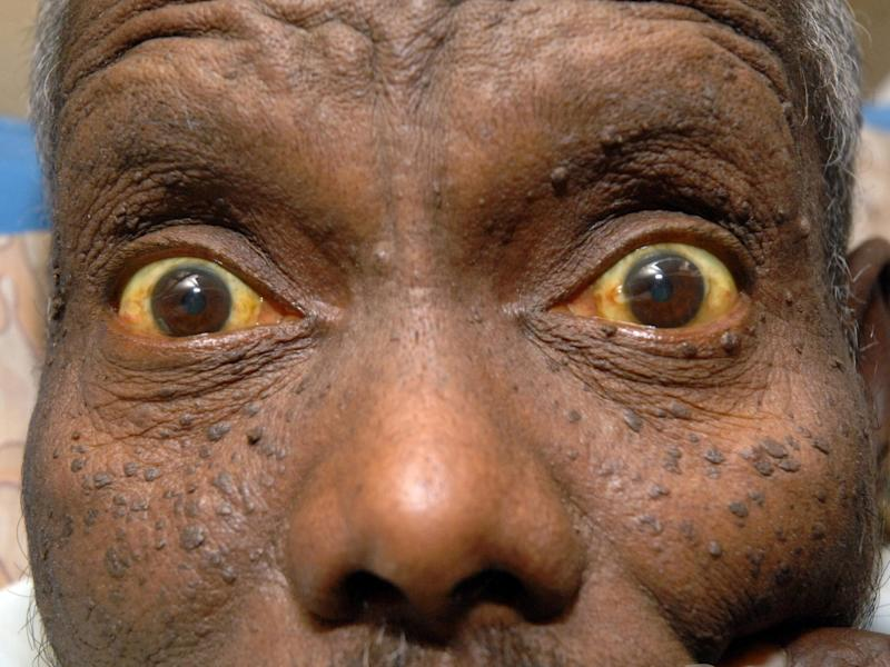 Jaundice is the yellowing of the skin and whites of the eyes (Rex Features)