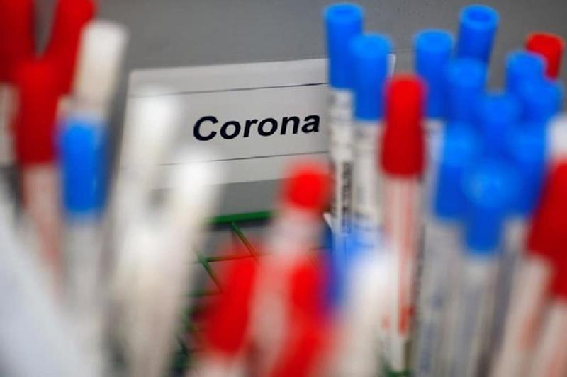 Coronavirus Is Mutating, Study Says, Making It More Contagious