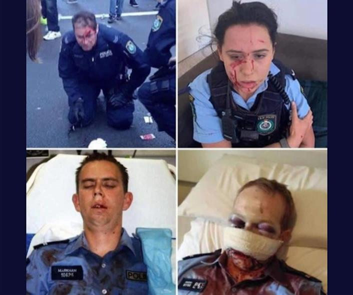 A viral social media post that claims police were injured by Democrats and Black Lives Matter demonstrators. The police are actually Australian and the incidents are years apart: Facebook