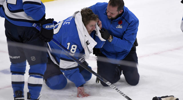 Bryan Little too a slapshot to the head Tuesday night against the New Jersey Devils. (Fred Greenslade/Canadian Press via AP)