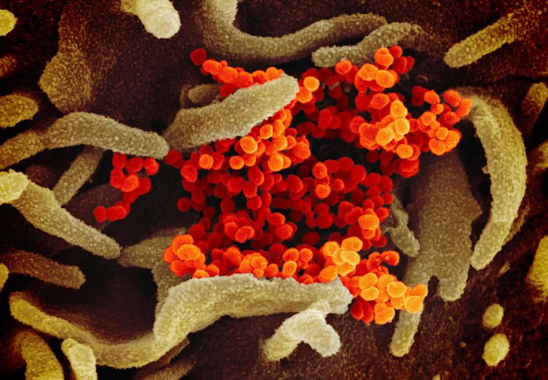 The Novel Coronavirus SARS-CoV-2, orange, emerging from the surface of cells, green, in a lab. There is no immediate threat of contracting the disease in the U.S., health officials said.  (Photo: ASSOCIATED PRESS)