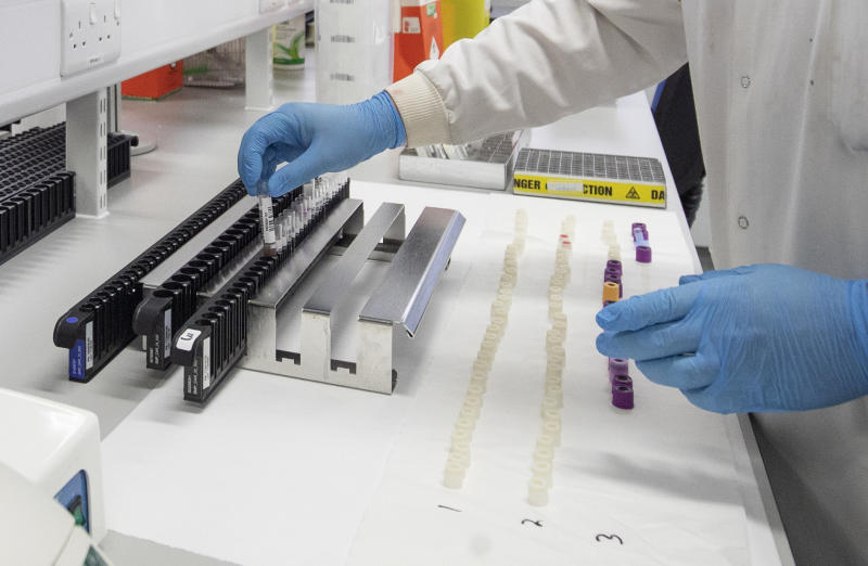 Clinical support technician Douglas Condie extracts viruses from swab samples so that the genetic structure of a virus can be analysed and identified in the coronavirus testing laboratory at Glasgow Royal Infirmary.