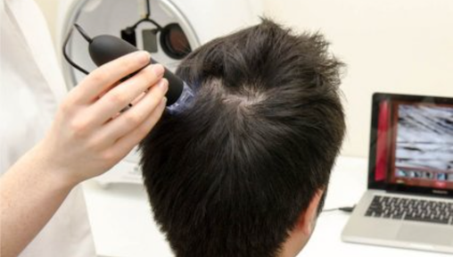 Best Hair Loss Treatments in Malaysia That You Need To Try Today