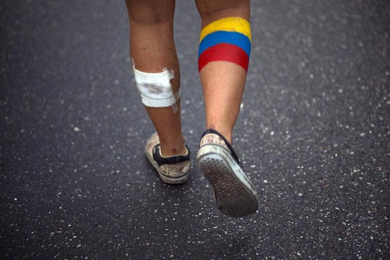 An anti-government protester attends a march with his leg painted in the colors of Venezuela's flag in Caracas, Venezuela, Wednesday, April 16, 2014. The opposition wants President Nicolas Maduro's government to free jailed opponents and create an independent truth commission to determine responsibility for deaths tied to protests that have rocked the nation since February. (AP Photo/Ramon Espinosa)