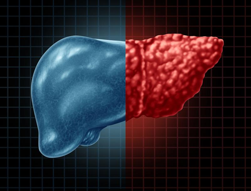 Cartoon image of a human liver set against a grid. Half the liver is healthy, while the other half is diseased.