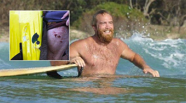 The surfer said he is lucky to be alive. Image: Supplied