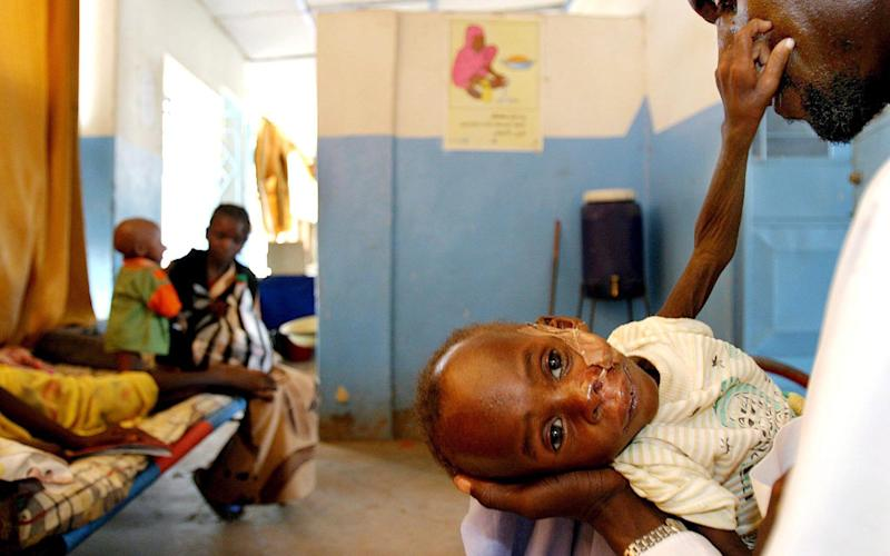 An 18-month-old Sudanese boy suffering from TB, which kills 1.6million people a year - EPA
