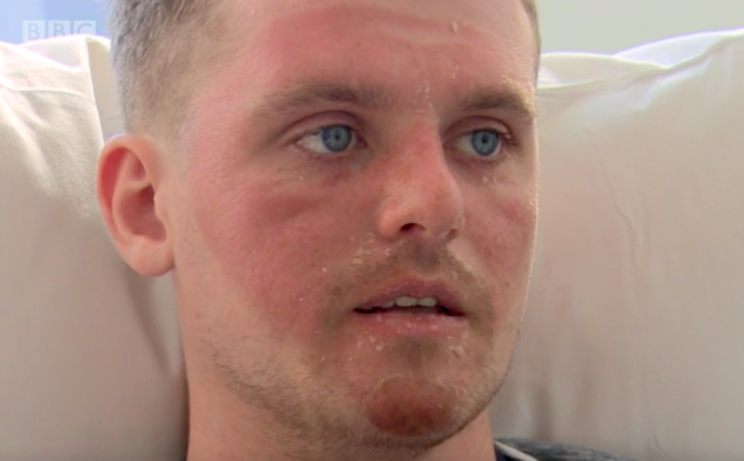 The 22-year-old has vowed never to surf again (BBC)