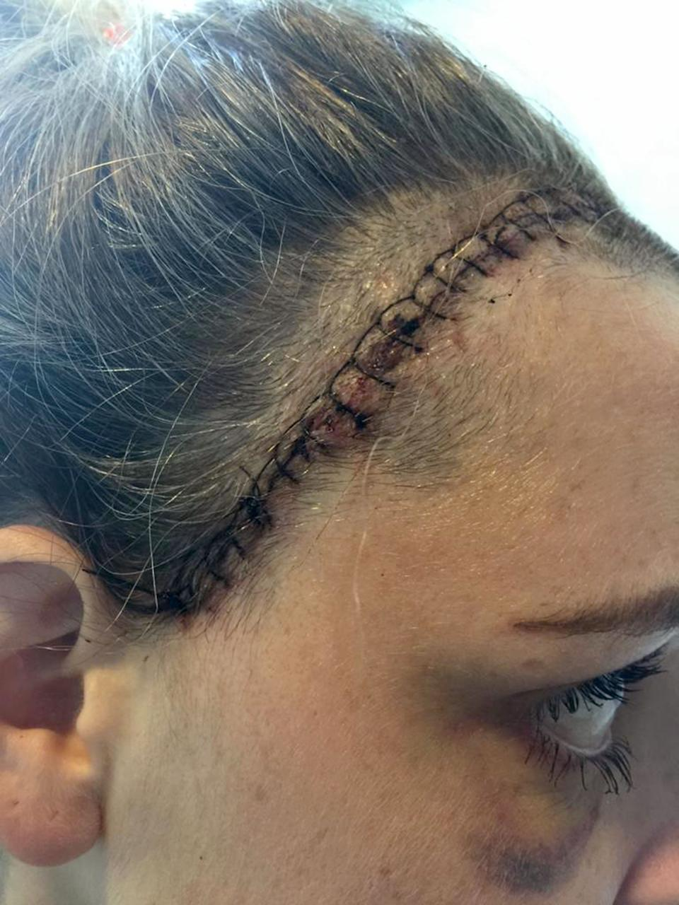 The stitches Emily had after surgery [Photo: Caters]