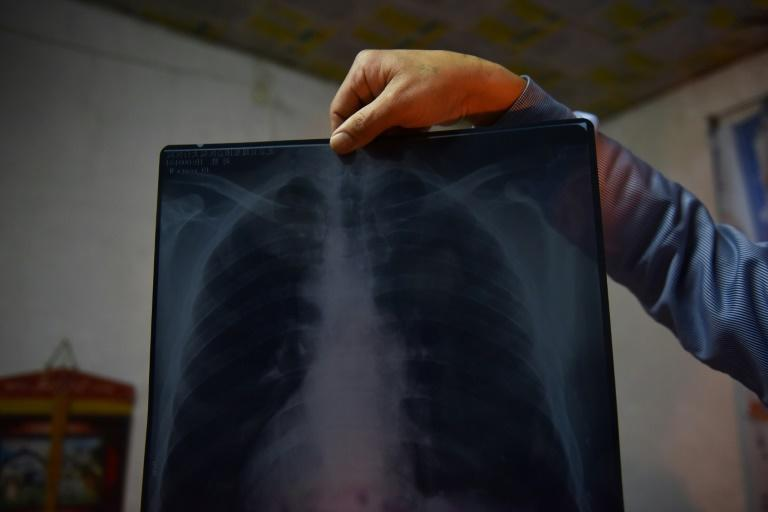 Former coal miner Liu Sheng showing an X-ray of his lungs at his home near the Datai coal mine in Mentougou, west of Beijing, in December 2019