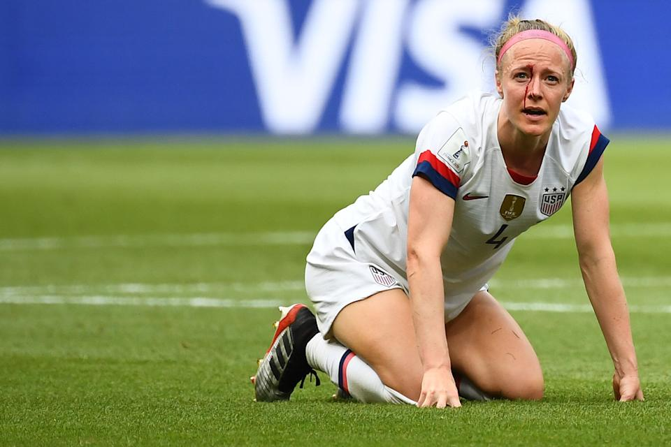 United States' defender Becky Sauerbrunn bleeds after an injury during the France 2019 Womens World Cup football final match between USA and the Netherlands, on July 7, 2019, at the Lyon Stadium in Lyon, central-eastern France. (Photo by FRANCK FIFE / AFP)        (Photo credit should read FRANCK FIFE/AFP/Getty Images)