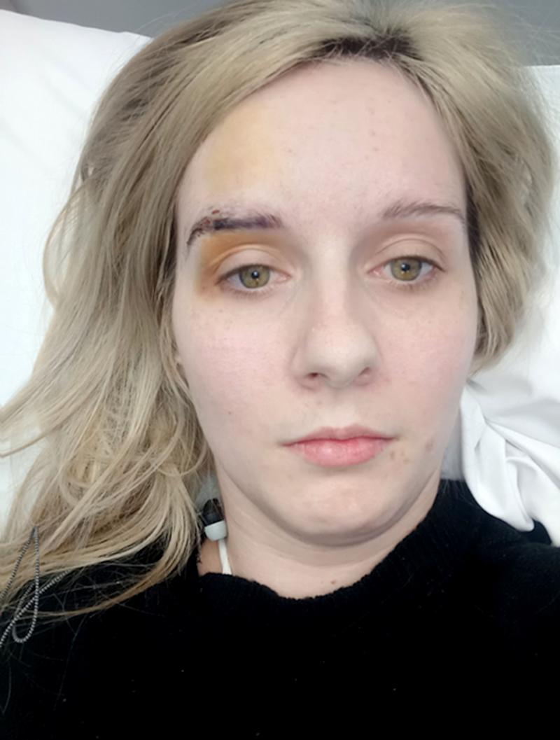 Alyssa, 27, from Brisbane, in hospital after breast implant nightmare