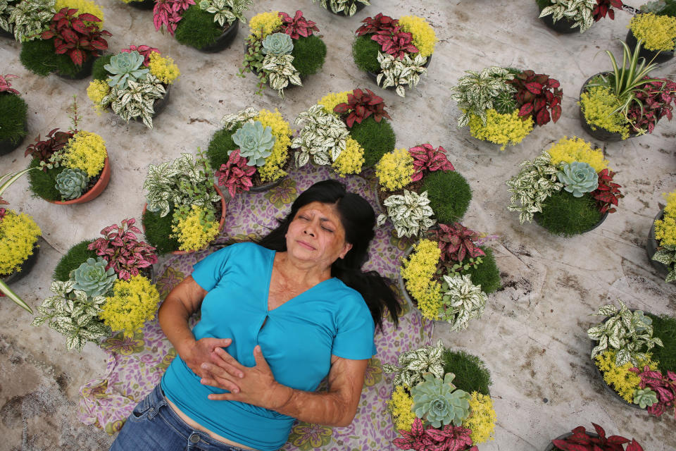 """Elisa Xolalpa, who survived an acid attack when tied to a post by her ex-partner 20 years ago when she was 18, poses for a portrait inside her greenhouse where she grows flowers to sell at a market in Mexico City, Sunday, May 30, 2021. """"I have to turn this pain into something else,"""" Xolalpa said. For now, that means demanding justice and not being silent. (AP Photo/Ginnette Riquelme)"""