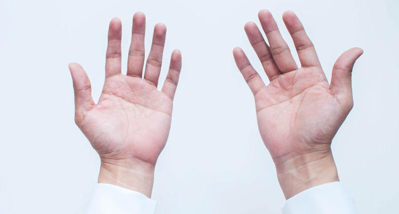 Researchers at Essex University may have determined whether the difference in length between the index finger and the ring finger could determine sexuality. Source: Getty Images (File pic)