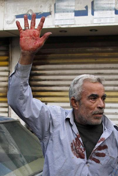 Moustafa Sharbini raises his hand to show the blood of his son Ali Sharbini, 16, who was killed during shooting, n the southern port city of Sidon, Lebanon, Sunday, Nov. 11, 2012. Security officials said shooting between Sunni and Shiite Muslim gunmen in southern Lebanon killed one person and wounded at least three. The clashes between followers of hardline Sunni cleric Sheik Ahmad al-Assir and members of the Shiite militant group Hezbollah broke out after Shiite religious banners were raised in the port city of Sidon. (AP Photo/Mohammed Zaatari)
