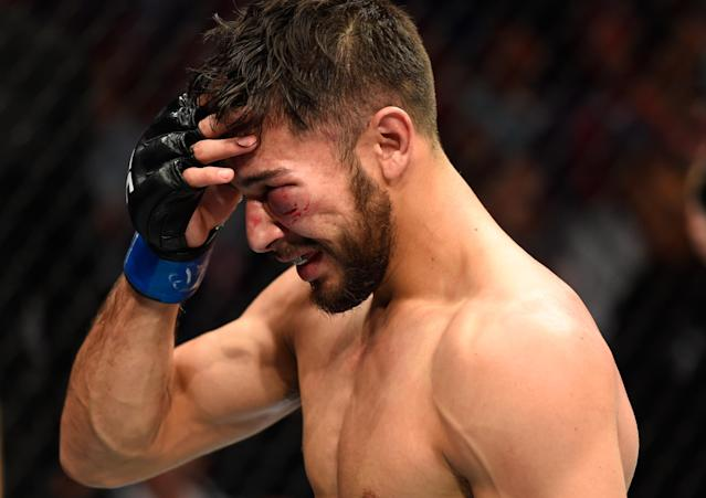 Yair Rodriguez reacts to his loss to Frankie Edgar during UFC 211 at the American Airlines Center on May 13, 2017 in Dallas. (Getty Images)