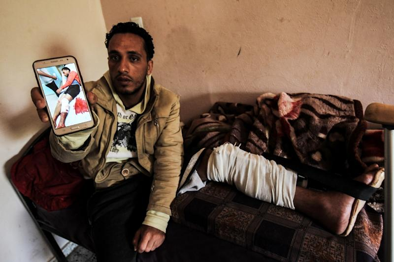 Tamer Abu Daqqa, a Palestinian who says he was shot by an Israeli sniper along the Gaza border during a protest, shows an image of himself in hospital after the incident as he rests at his home in Khan Yunis in the southern Gaza Strip on April 11, 2018 (AFP Photo/SAID KHATIB)