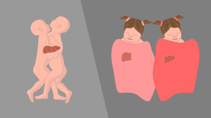 A diagram illustrates how Sarabeth and Amelia were conjoined and separated. (Courtesy Michigan Medicine)