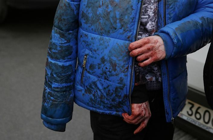 <p>An iniured person is shown outside the Sennaya Ploshchad metro station in St. Petersburg, Russia, April 3, 2017. At least 10 people were killed Monday in an explosion on the subway in St. Petersburg, Russian news agencies reported. (Anton Vaganov/Reuters) </p>