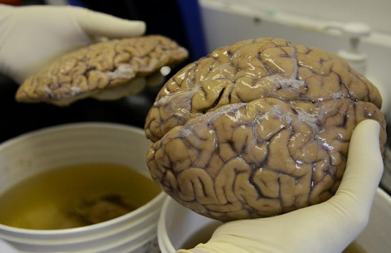 Around the age of 13, the human brain region that hosts memory and learning appears to stop producing nerve cells, according to a new study. (AFP Photo/RAUL ARBOLEDA)