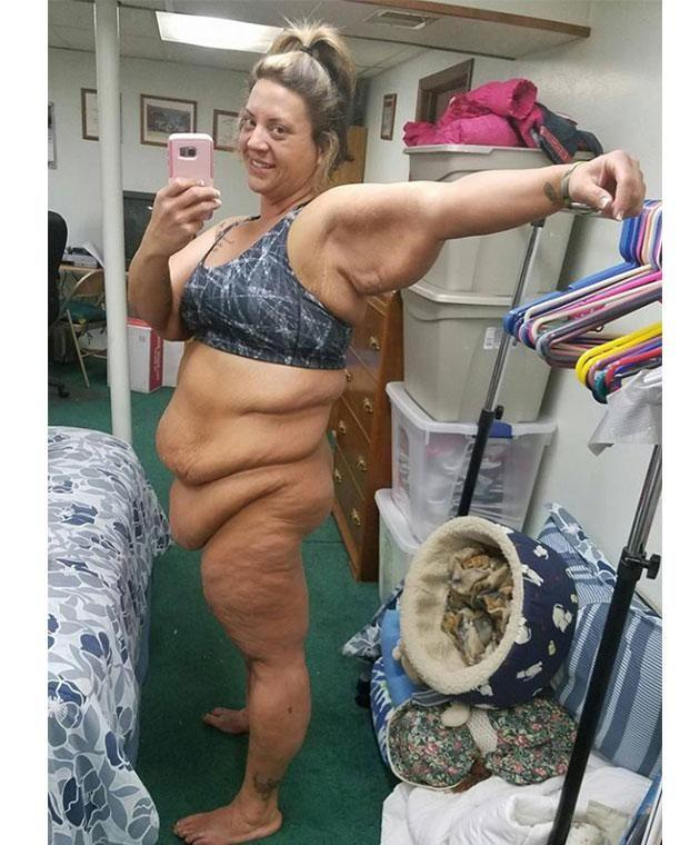 Mum-of-two Wendy has been left battling excess skin after losing an incredible amount of weight. Photo: www.gofundme.com