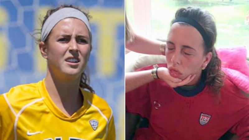 Ohio Soccer Player Is Dangerously 'Allergic' to Her Own Sweat
