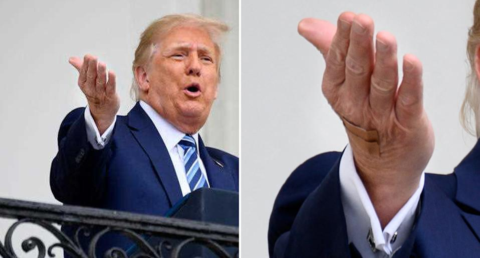 US President Donald Trump speaks at the White House with a bandage seen on his right hand.