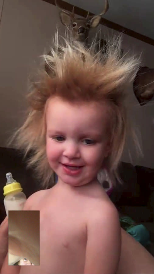 Phoebe has a condition called Uncombable Hair Syndrome [Photo: SWNS]