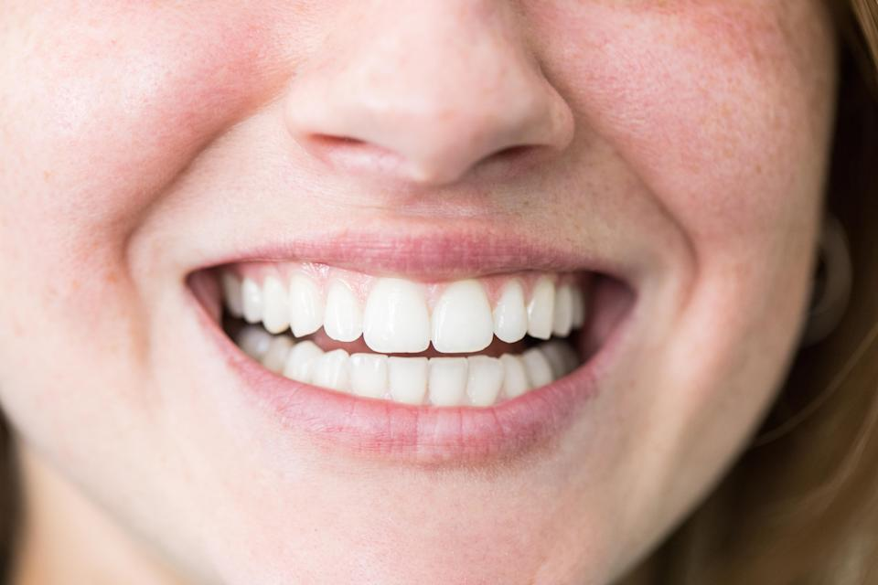 A great teeth-whitener on sale is definitely something to smile about. (Photo: Getty)