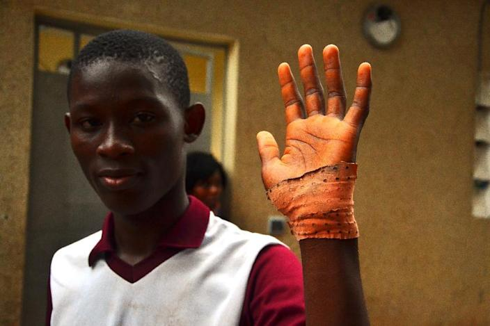 Cedric, a 14-year-old boy who survived an attack, shows his wound in Yopougon, a suburb of Abidjan, January 26, 2015 (AFP Photo/Herve Sevi)