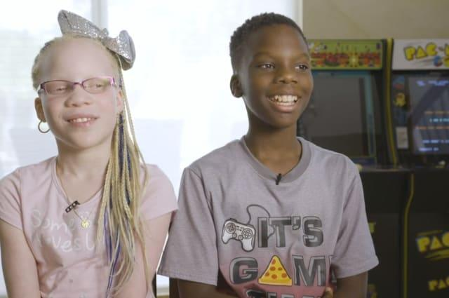 The nine-year-old twins born different