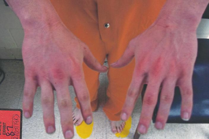 While doctors tried to save Cayley Mandadi's life, officers on the scene interviewed Mark Howerton about what happened that night. They took photos of his hands. / Credit: Bexar County Court