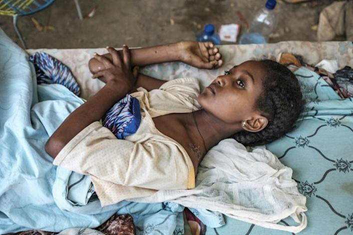 A girl recovers from wounds in the Tigray town of Humera, one of several where communication has been partially restored