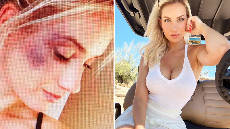 Paige Spiranac, pictured here after being punched by her college roommate.