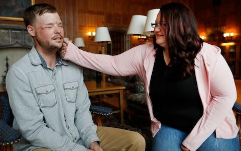 Lilly Ross, right, feels the beard of face transplant recipient Andy Sandness during their meeting at the Mayo Clinic - Credit: AP Photo/Charlie Neibergall