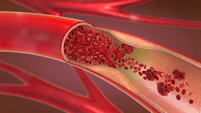 """<p>Most of the time, blood clots are a good thing. When you get injured, you need your blood to solidify and clump together at the site to help stop the bleeding. But sometimes clots crop up when they're not needed, and that can spell trouble—especially if they form in the deep veins near your muscles. </p><p>""""When blood clots form in this deeper system, they can be painful and very dangerous,"""" says Luis Navarro, M.D., founder of the <a href=""""http://veintreatmentcenter.com/"""" rel=""""nofollow noopener"""" target=""""_blank"""" data-ylk=""""slk:Vein Treatment Center"""" class=""""link rapid-noclick-resp"""">Vein Treatment Center</a> in New York City. This kind of clot is called a deep vein thrombosis, or DVT. They're like roadblocks on your blood highway, causing traffic jams in your circulation and prevent the blood flow that keeps your system up and running.</p><p>Things can get even more serious if a DVT breaks away from its original spot and travels to your lungs. Then it becomes a <a href=""""https://medlineplus.gov/pulmonaryembolism.html"""" rel=""""nofollow noopener"""" target=""""_blank"""" data-ylk=""""slk:pulmonary embolism"""" class=""""link rapid-noclick-resp"""">pulmonary embolism</a>, a clot that prevents these vital organs from getting the oxygen and blood they need. That can damage your lungs and other organs and may even be fatal. </p><p>Some people are more prone to a DVT than others, so it's worth <a href=""""https://www.prevention.com/health/10-things-that-can-up-your-risk-for-blood-clots/"""" rel=""""nofollow noopener"""" target=""""_blank"""" data-ylk=""""slk:staying on top of any risk factors"""" class=""""link rapid-noclick-resp"""">staying on top of any risk factors</a>. What's more, """"it's important to recognize symptoms of a blood clot because they can often be minimal or overlooked,"""" and getting prompt treatment is key, says Dr. Navarro. Here are the warning signs of a <a href=""""https://www.prevention.com/health/a32264828/coronavirus-blood-clots/"""" rel=""""nofollow noopener"""" target=""""_blank"""" data-ylk=""""slk:blood clot"""" class=""""link """