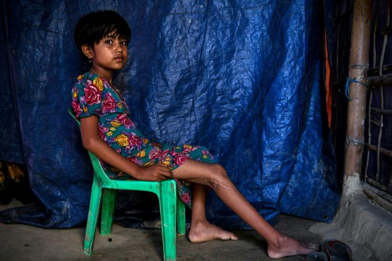 Rohingya refugee Minara, 8, cannot walk properly after being shot in the back of the knee