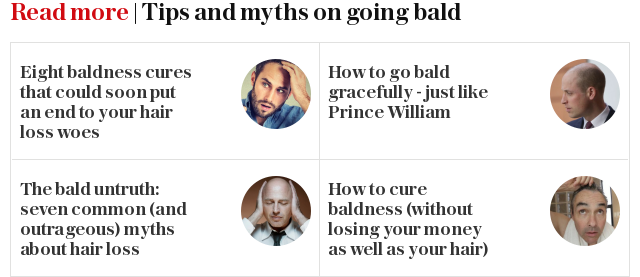 Read more | Tips and myths on going bald