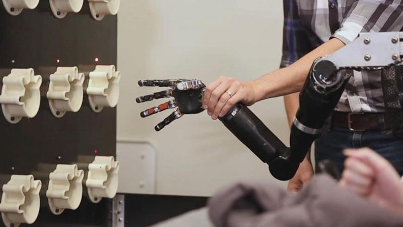 Bionic Hand and Brain Implant Allow Paralyzed Man to 'Feel' Again