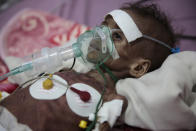 A malnourished girl Rahmah Watheeq receives treatment at a feeding center at Al-Sabeen hospital in Sanaa, Yemen, Tuesday. Nov. 3, 2020. Two-thirds of Yemen's population of about 28 million people are hungry, and nearly 1.5 million families currently rely entirely on food aid to survive, with another million people are set to fall into crisis levels of hunger before the year end, according to aid agencies working in Yemen. (AP Photo/Hani Mohammed)