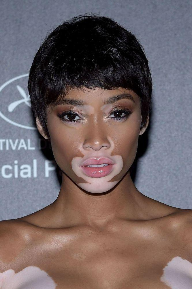 <p>Ok, it might be a wig, but we're all about Winnie Harlow's ode to the pixie crop.</p>