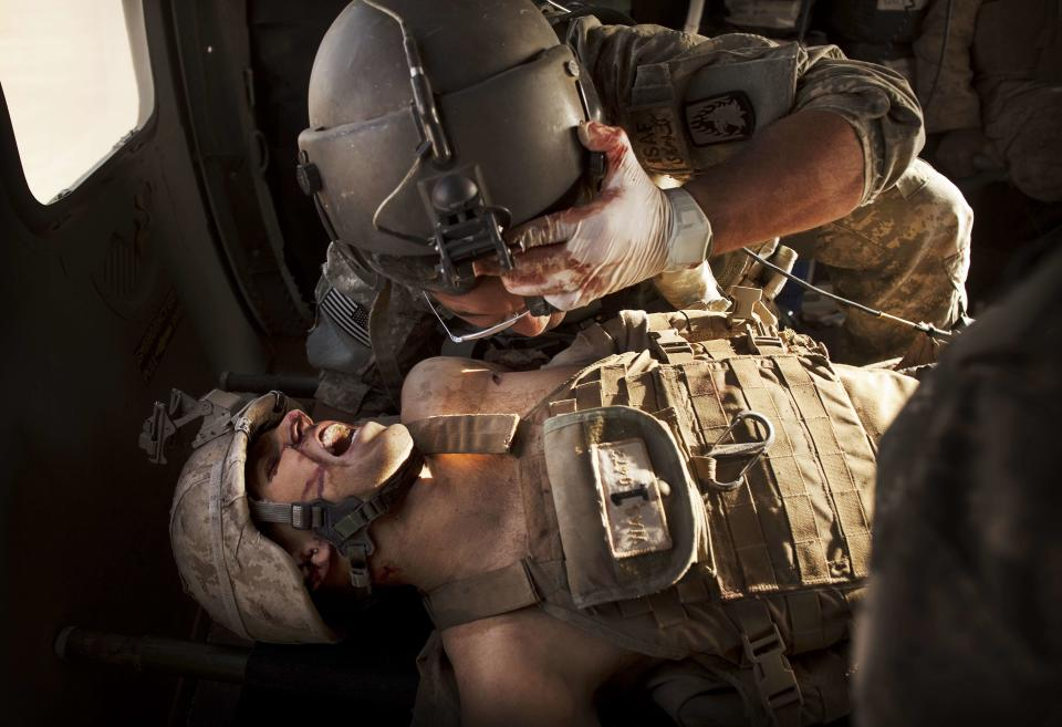 """U.S. Army flight medic SGT Jaime Adame, top, cares for seriously wounded Marine CPL Andrew Smith following an insurgent attack on board a medevac helicopter Sunday, May 15, 2011, from the U.S. Army's Task Force Lift """"Dust Off"""", Charlie Company 1-214 Aviation Regiment north of Sangin, in the volatile Helmand Province of southern Afghanistan. (AP Photo/Kevin Frayer)"""