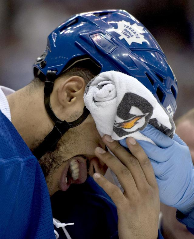 Toronto Maple Leafs defenseman Mark Fraser is helped off the ice after getting hit in the face by a puck during the third period of Game 4 of their NHL hockey Stanley Cup playoff series against the Boston Bruins, Wednesday, May 8, 2013, in Toronto. (AP Photo/The Canadian Press, Frank Gunn)