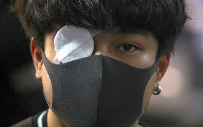 A demonstrator wears a patch over his eye during a 'Global Solidarity with Hong Kong' - Bloomberg