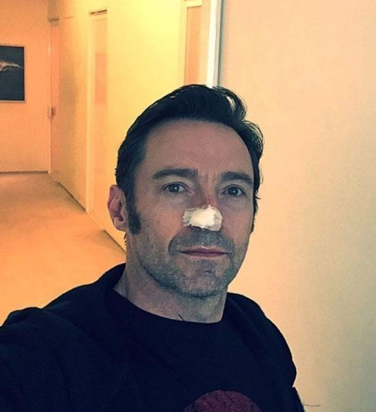 Hugh's latest snap of his bandaged nose. Source: Instagram