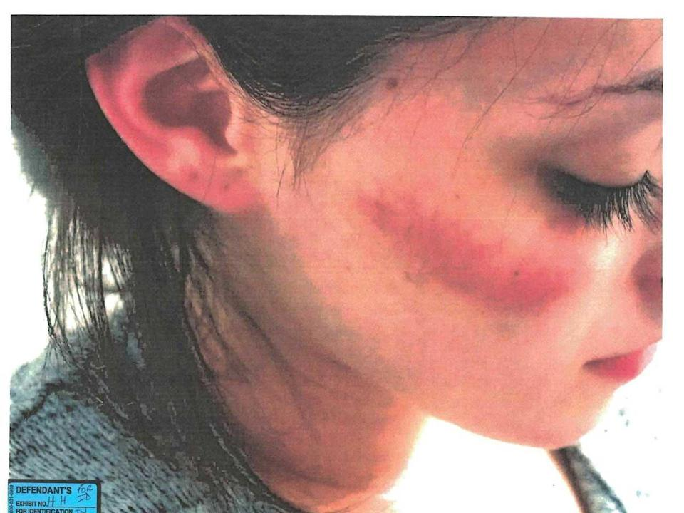 At Nikki Addimando's trial, defense attorneys presented photos of injuries she'd sustained over the years, arguing that Chris Grover had caused these injuries. Prosecutors said the injuries could have been unrelated or self-inflicted. / Credit: John Ingrassia and Benjamin Ostrer, Defense Attorneys