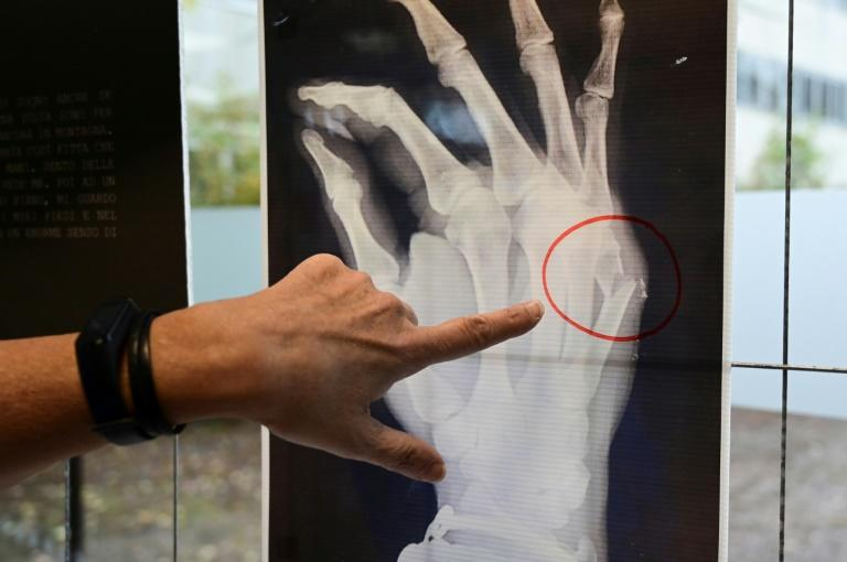 A Milan hospital is displayingX-rays from victims of domestic violence who have passed through the doors of the facility seeking help