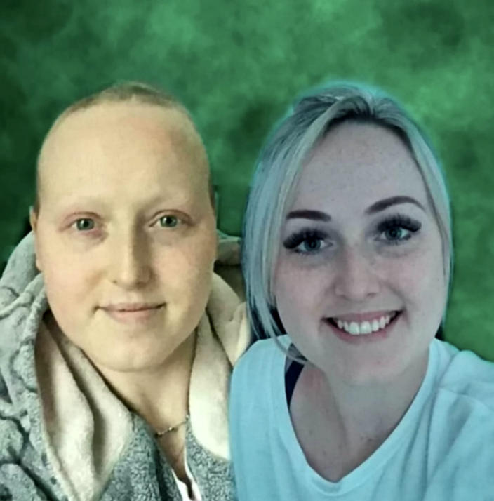 Sarah Boyle during treatment (left) and before (right) [Photo: SWNS]
